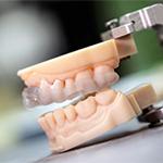 Stratasys 打印机牙科行业解决方案――3D 打印开启了数字化牙科时代