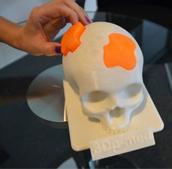 HAGE 3D打印机在颅骨植入术的应用